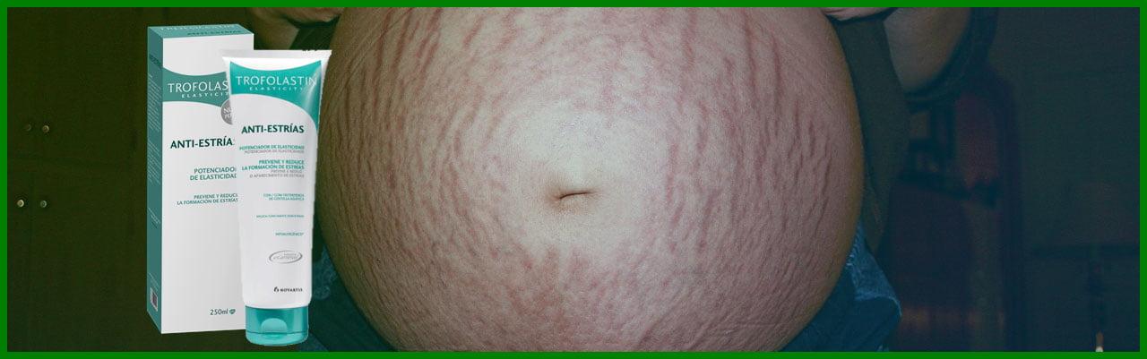 trofolastin anti estrias embarazo