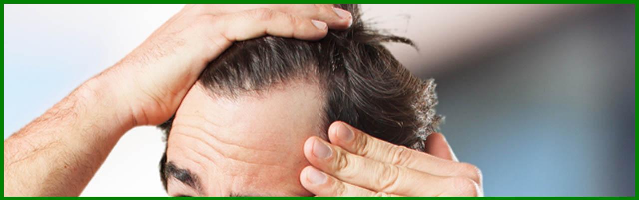 anticaída cabello pilexil capicaps iraltone