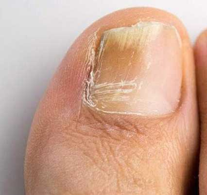 hongo uña dedo pie