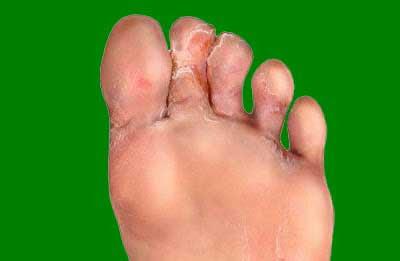 signos pie de atleta