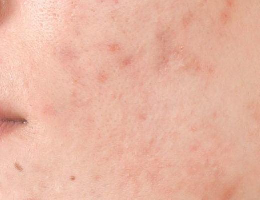 cicatrices marcas manchas acné