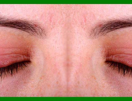 blefaritis inflamación párpado